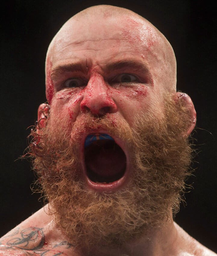 Garreth McLellan, of South Africa, reacts after his fight against Alessio Di Chirico, of Italy.